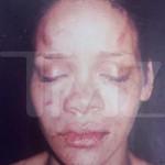 Rihanna's Battered Pics Surface + Still No Chris Brown Mugshot