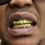 no-mold-gold-teeth