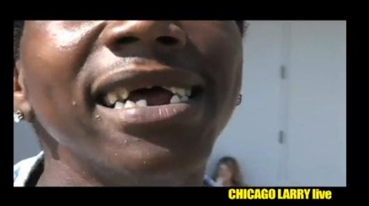 lonzos-teeth