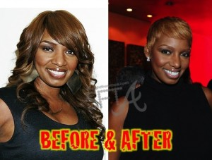 nene leakes before and after