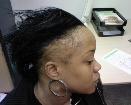 Type 2 diabetes was also higher in the women with hair loss ...