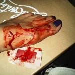 Monica Foot Injury