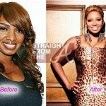 NeNe Leakes Addicted to Plastic Surgery?
