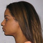 Lil Wayne's Dancers Beat Up Waitress Who Wouldn't Split the Check… *Mugshots*