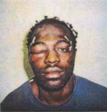A photo of Rodney King after his run-in with police on March 3, 1991.