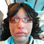 Shanyna Isom Skin Condition-8