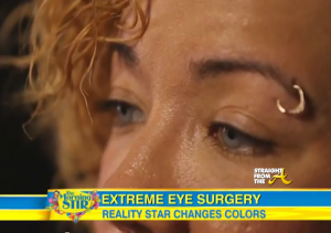 Tiny Harris Eye Color Surgery - StraightFromTheA 1
