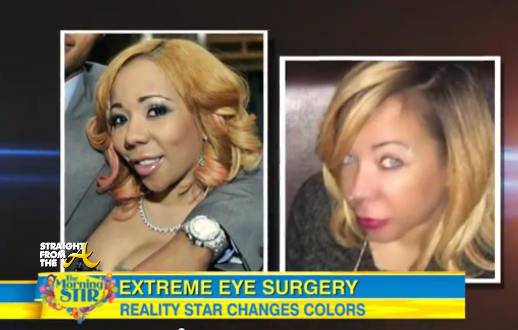 Tameka \'Tiny\' Harris Publicly Addresses Her Controversial Eye ...