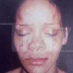 Rihanna's Battered Pics Surface + Still No Chris Brown Mugshot