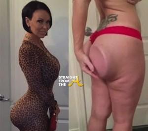 Renee Tally Butt Implant Fail 8