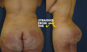 misshapen-butts-1