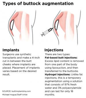 Types of Butt Augmentation